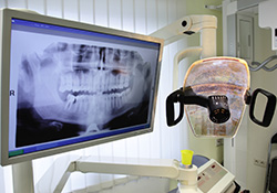 Digital x-rays on computer screen in dental exam room