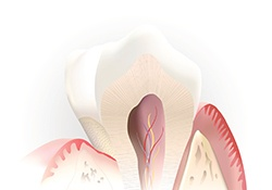 Animation of root canal